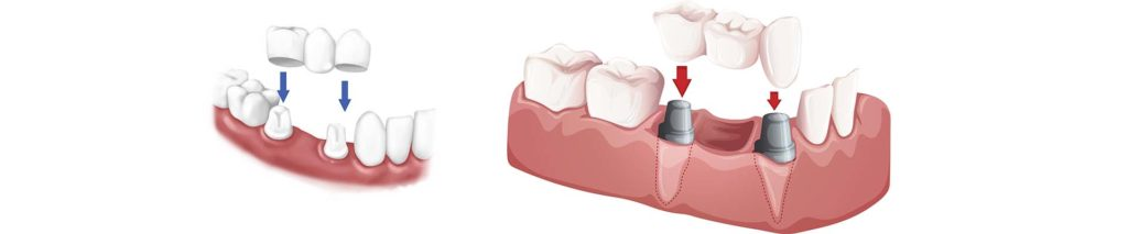 Dental Crown and Bridge for Teeth