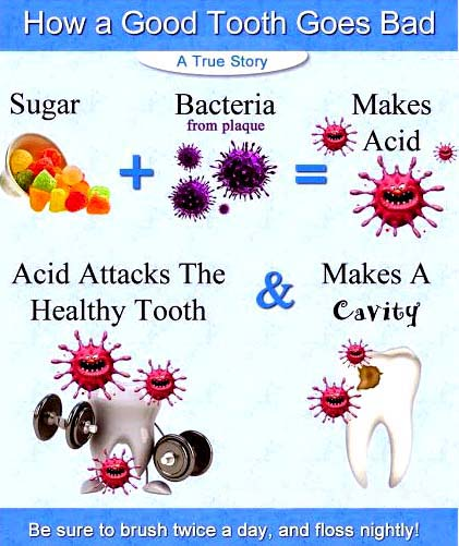 Dental Caries Treatment